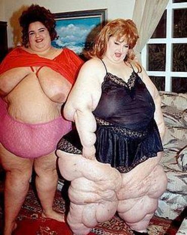 Ani extrémní až morbidní obezita nebrání některým lidem v rozpustilém dovádění.