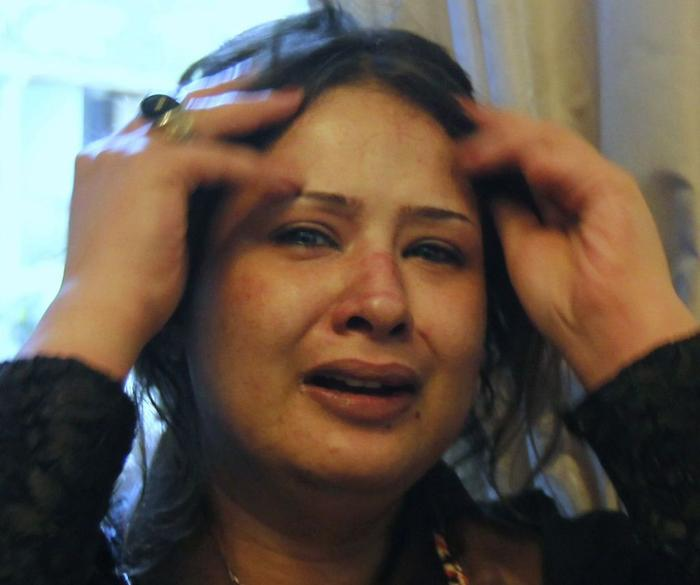 Imán Obajdíová má na tváři viditelné šrámy.