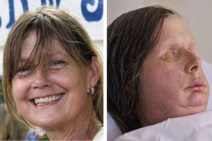 <H2>Transplantace obličeje</H2><P>První částečná transplantce obličeje proběhla ve Francii v Amiensu v roce 2005. O pět let později lékaři ve Španělsku provedli první celkovou transplantaci tváře. Velkým milníkem se pak staly transplantace obličeje, které v nemocnici v Bostonu v Massachusetts provádí původně český lékař <B>Bohdan Pomahač</B>. Uskutečnil i první úplnou transplantaci obličeje ve Spojených státech, která byla zároveň teprve třetí na celém světě. Nyní se chystá na transplantace nohou. </P>