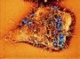 Bakt�rie kapavky Neisserie gonorrhoeae na povrchu bun�k d�lo�n�ho hrdla