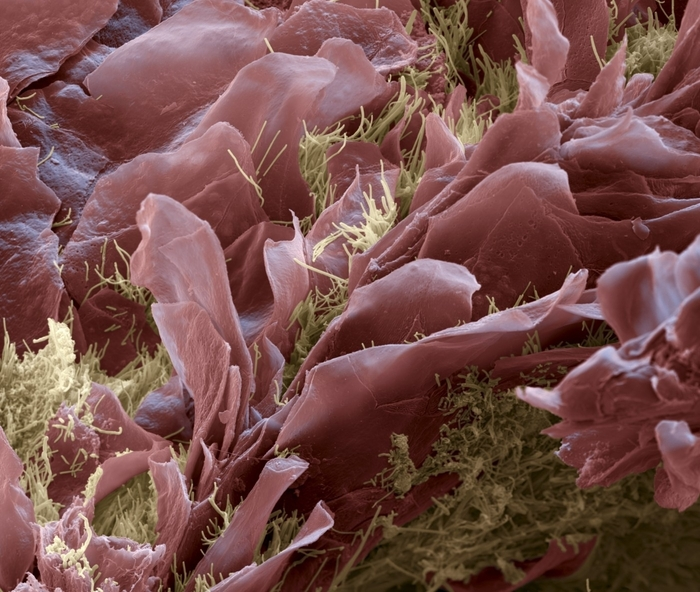 Bu�ky jazyka, pokryt� bakt�ri�, kter� p�i v�t��m zmno�en� zp�sobuje p�chnouc� dech